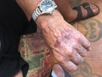 Mozzecane picchiati per strada da un motociclista